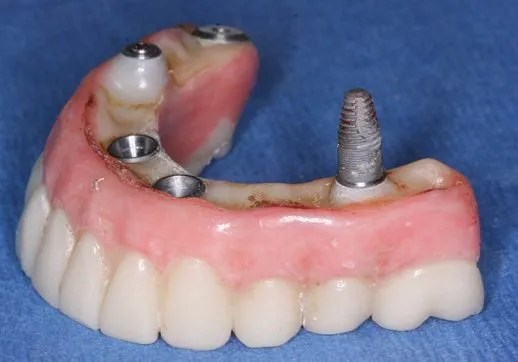 Image of lost dental implant all on 4