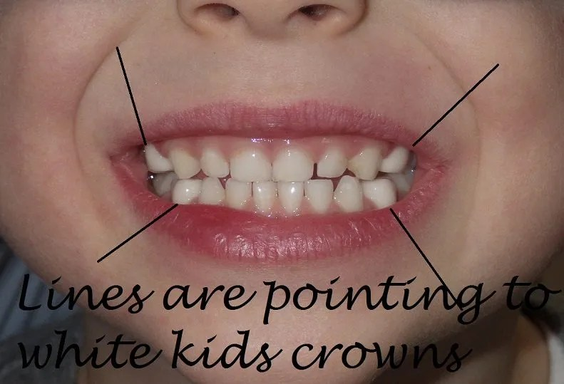 Image of a white kids crown alternative