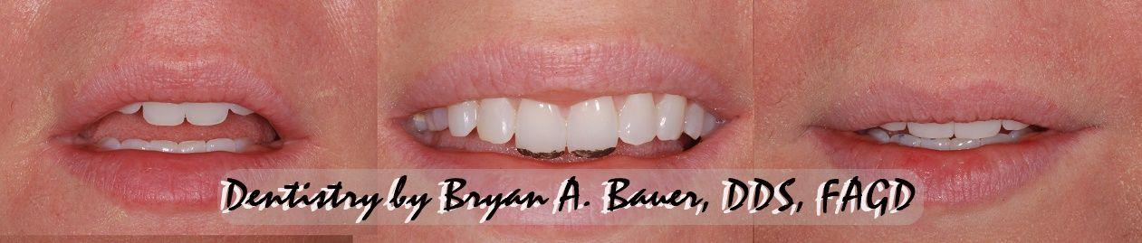 Image of enameloplasty upper teeth
