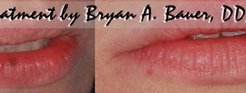 Freckle on lip removal cost
