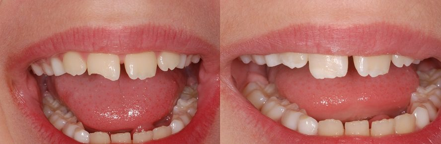 Piece of front tooth fell off?