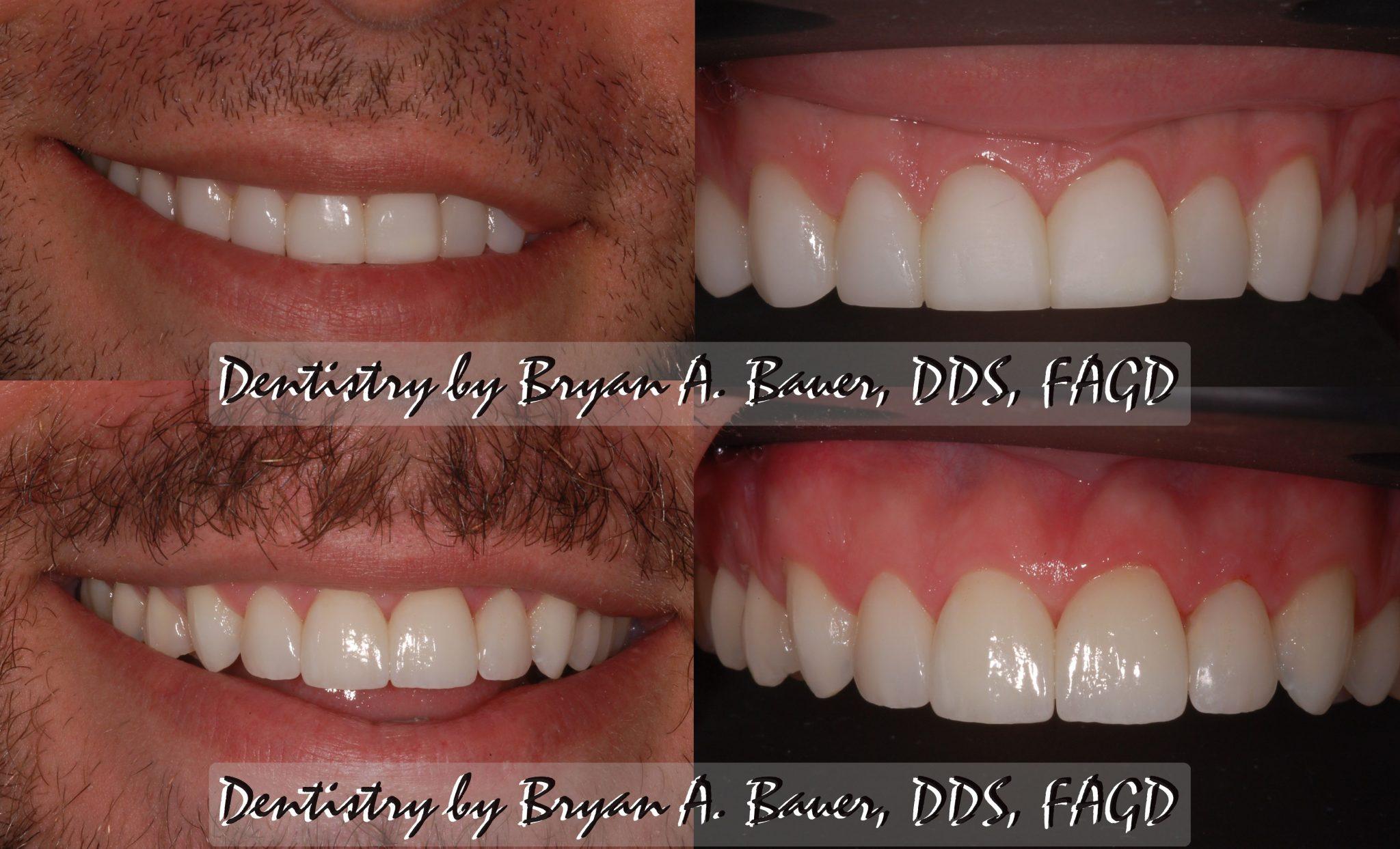 High resolution of dental veneers that we replaced