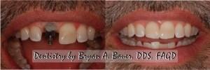 dental implants wheaton
