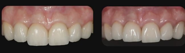 Image of patient that had a dental implant too young?