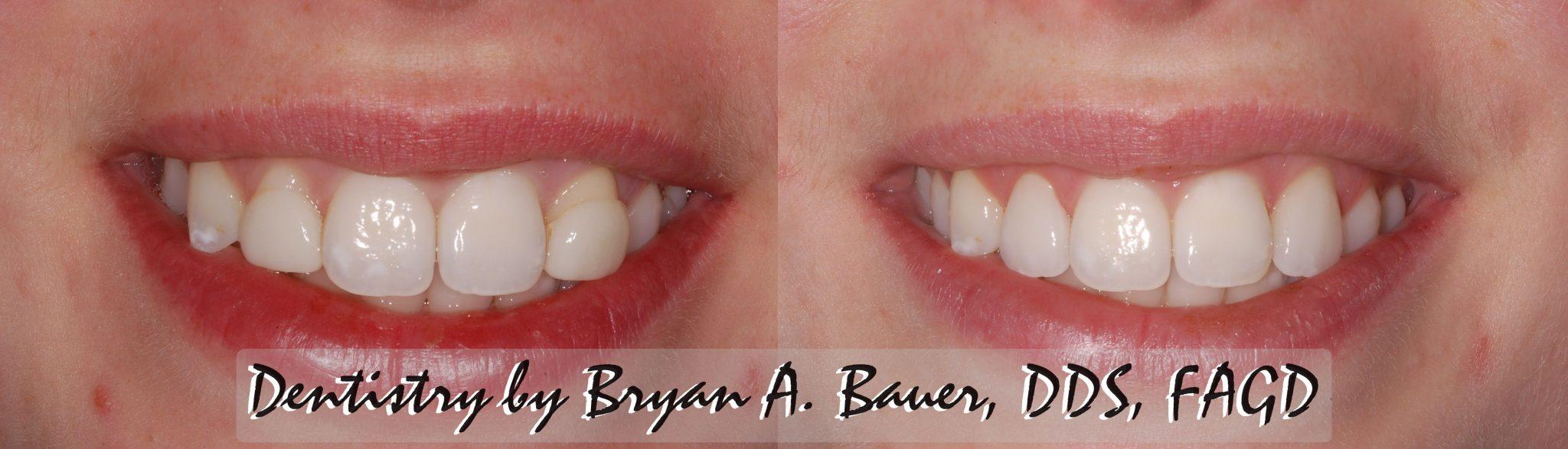 Replacement of dental veneers