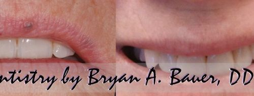 little blue bump on lip