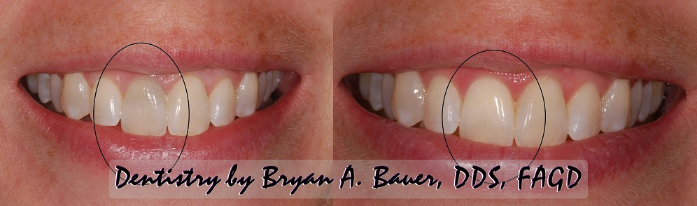Internal Bleaching Cost Internal Whitening Materials Bauer Smiles