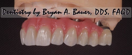 All on 6 with zirconia teeth