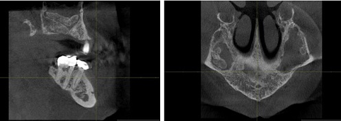 Maxillary antrolith is a calcified mass within the sinus