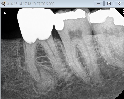 Condensing osteitis from a necrotic tooth.