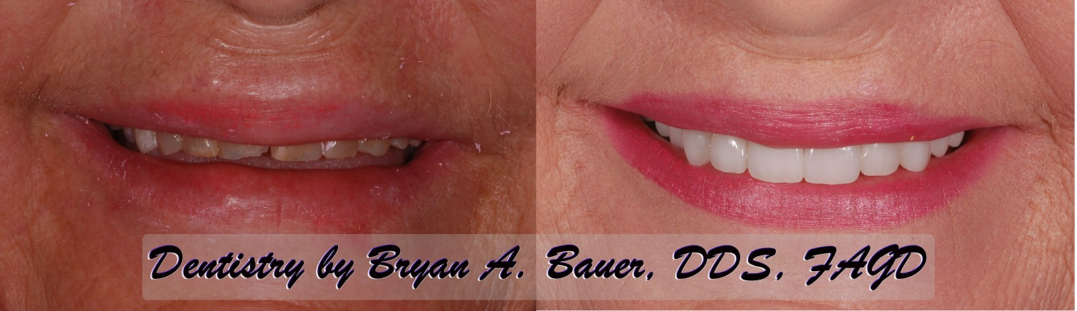 Worn down teeth fixed with dental veneers