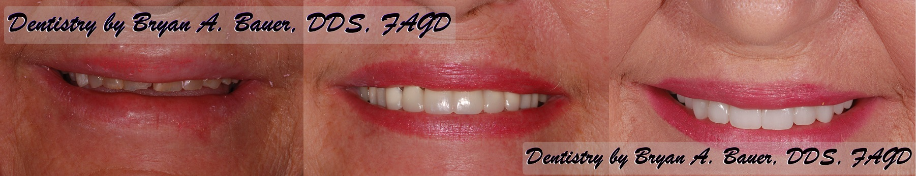 Worn down front teeth with temporary crowns in place.