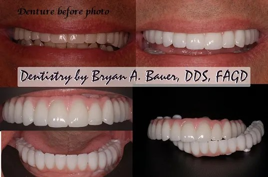 Zirconia framework all on 6 before and after photos