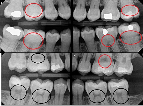 Photos of dental pulp calcification