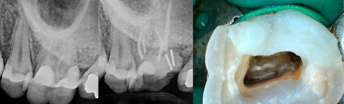 Dentin pin use in a badly decayed tooth.