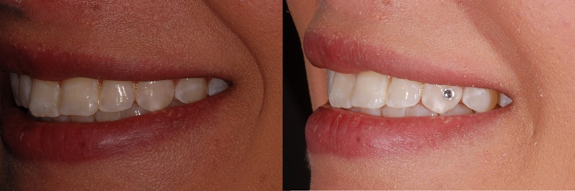 Tooth gem before and after photos.