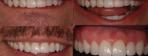 temporary dental veneers