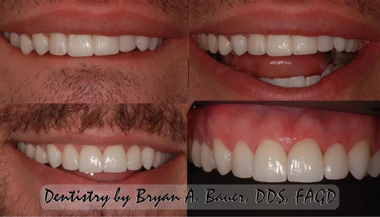 Before and after photos of temporary dental veneers