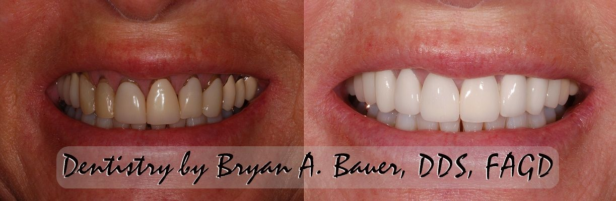 Before and after phtoos of treatment with dental veneers for receding gums.