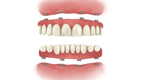 Dental Implants Full teeth implants