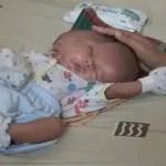 Siamesische Zwillinge in Indonesien geboren