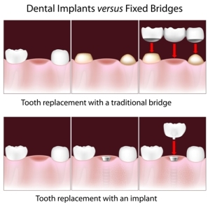 Tooth Implant Dental Implants Fremont Dentist