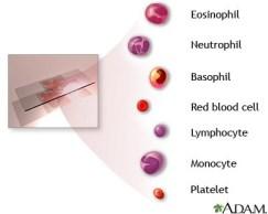 صورة الدم الكاملة للكشف عن فقر الدم