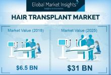 Photo of Hair Transplant Market to Hit $31 Billion by 2025: Global Market Insights