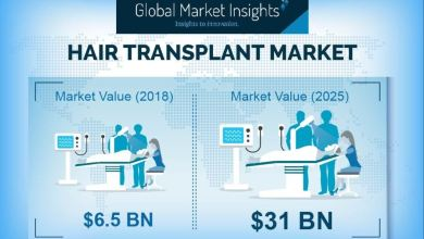 Hair Transplant Market to Hit $31 Billion by 2025: Global Market Insights 29