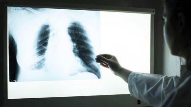 Smoking kills 3 times more than COVID-19 24