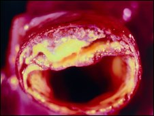 Placas de grasa en arteria