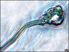 Espermatozoide de laboratorio