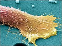Novo medicamento é eficiente contra formas agressivas do câncer