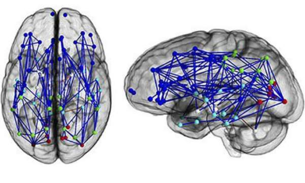 Neural map of a typical man's brain. Photograph: National Academy of Sciences/PA