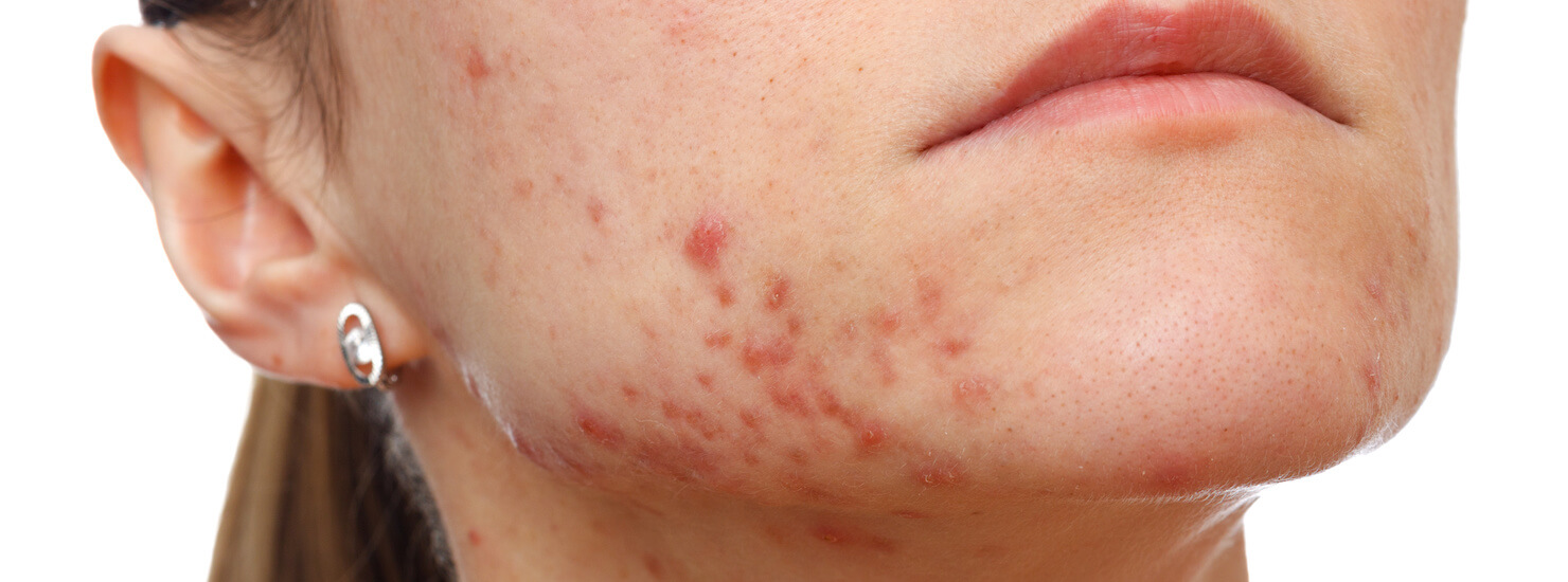 acne vulgaris condition on jawline of face - a treatable condition with laser technology and skin care