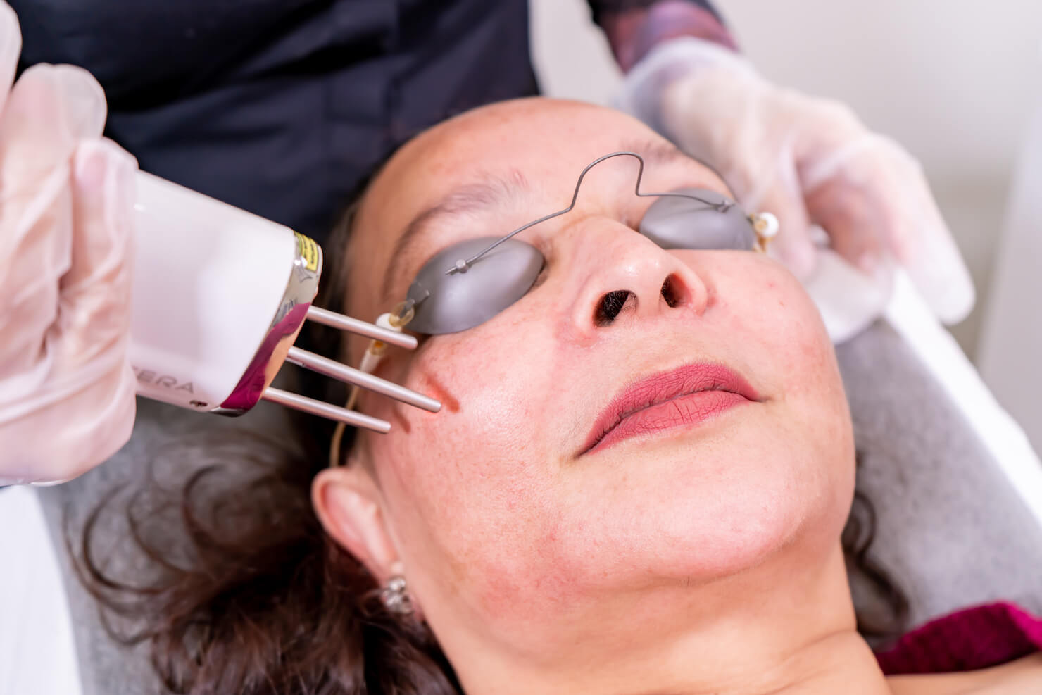enlighten picosecond laser being used on face for surrey pigmentation treatment