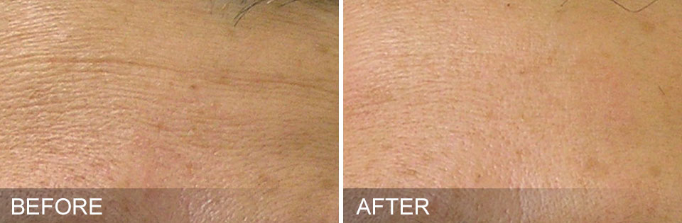 HydraFacial fine lines treatment before and after