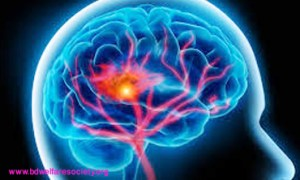 Post-Traumatic Accent Ataxia or, Post-Traumatic Stress Disorder (PTSD) - Diagnostic Procedure, Collected Unique Picture No-00026....