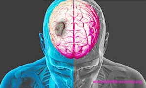 Post-Traumatic Accent Ataxia or, Post-Traumatic Stress Disorder (PTSD) - Diagnostic Procedure, Collected Unique Picture No-00027....