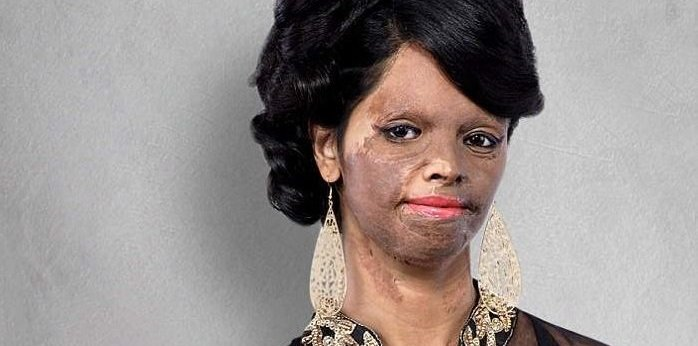 A brave Acid Attack Victim who is presenting hope to all of the Acid-attack Victims