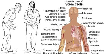 Parkinsonism: Parkinson's Disease, Manganese Exposure and Possibility of Stem Cell Therapy