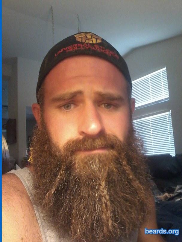 Robert: today's beard, 2016/12/05