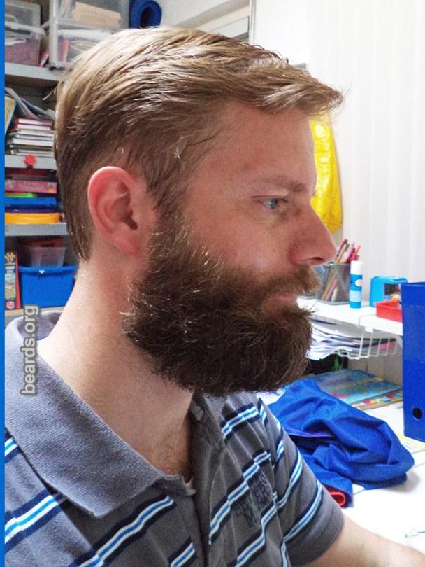 William, beard photo 4