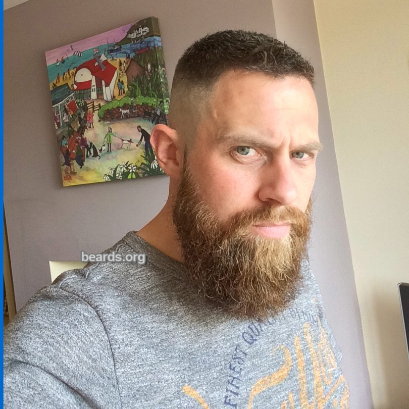 Neil, beard photo 1