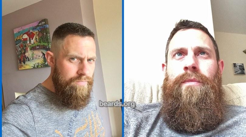Neil, featured beard image
