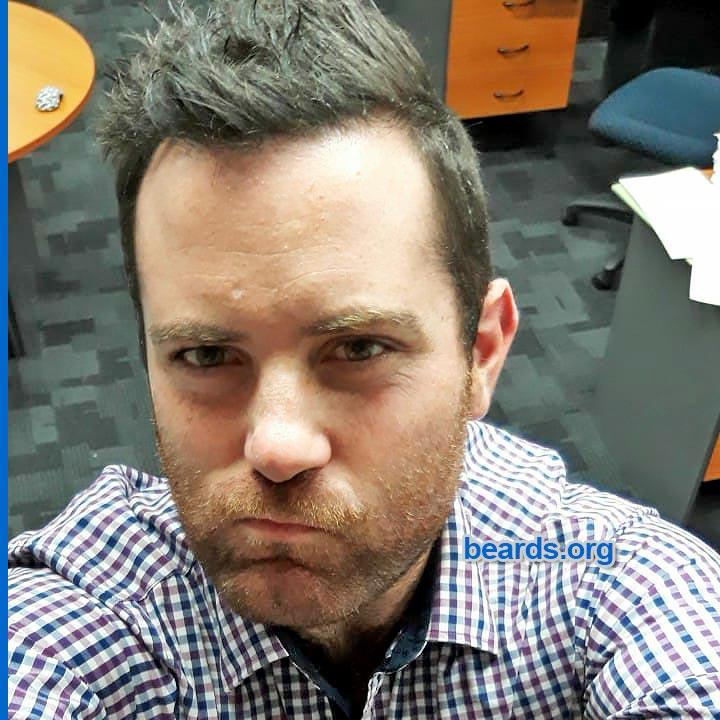 Brock soon after shaving his big beard
