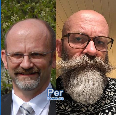Per's superior beard, featured image 3