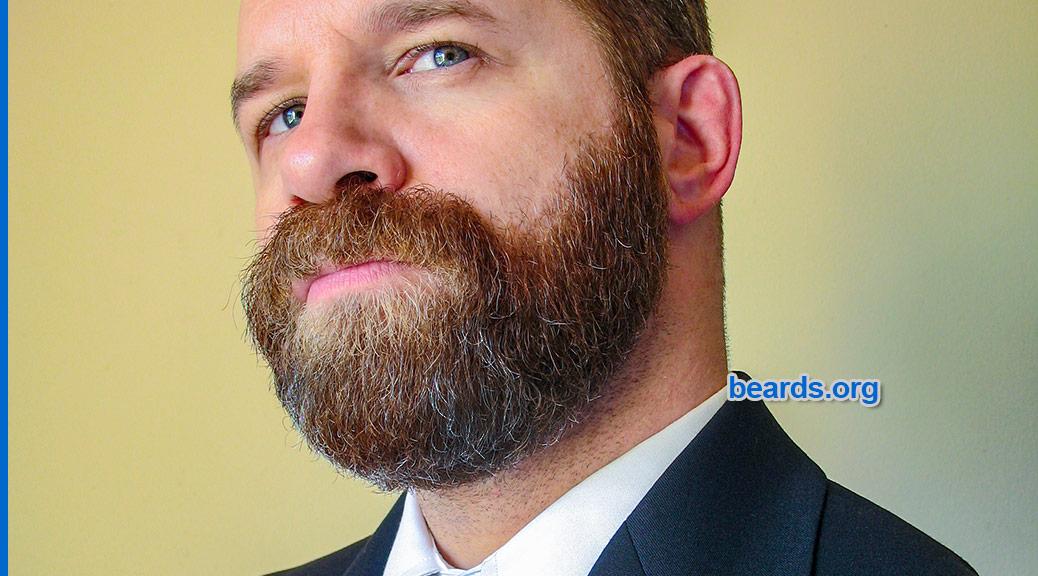 beard image 002 for beard survey for men