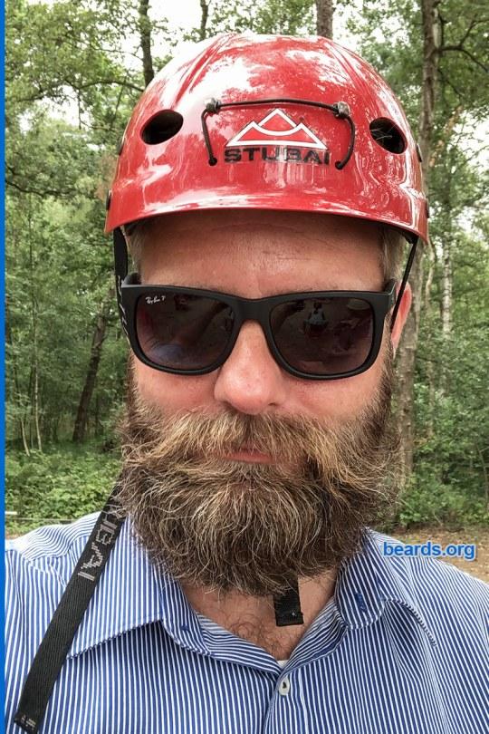 William's winning beard, gallery photo 1