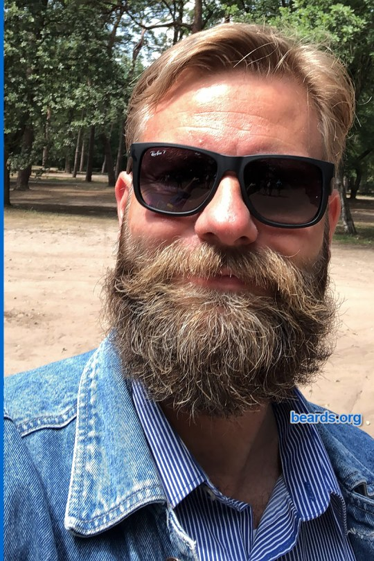 William's winning beard, gallery photo 2